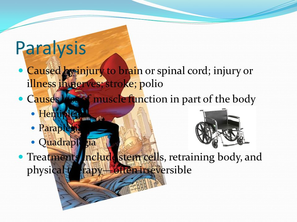 Paralysis Caused by injury to brain or spinal cord; injury or illness in nerves; stroke; polio Causes loss of muscle function in part of the body Hemiplegia Paraplegia Quadraplegia Treatments include stem cells, retraining body, and physical therapy—often irreversible