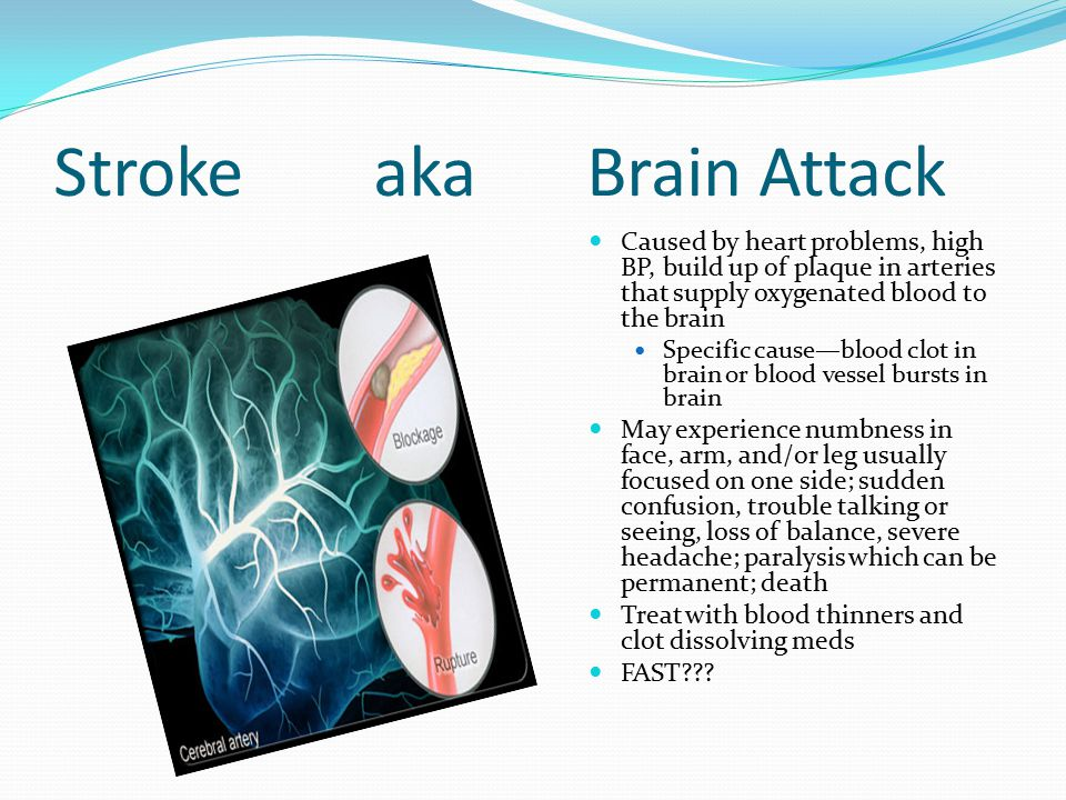 StrokeakaBrain Attack Caused by heart problems, high BP, build up of plaque in arteries that supply oxygenated blood to the brain Specific cause—blood clot in brain or blood vessel bursts in brain May experience numbness in face, arm, and/or leg usually focused on one side; sudden confusion, trouble talking or seeing, loss of balance, severe headache; paralysis which can be permanent; death Treat with blood thinners and clot dissolving meds FAST