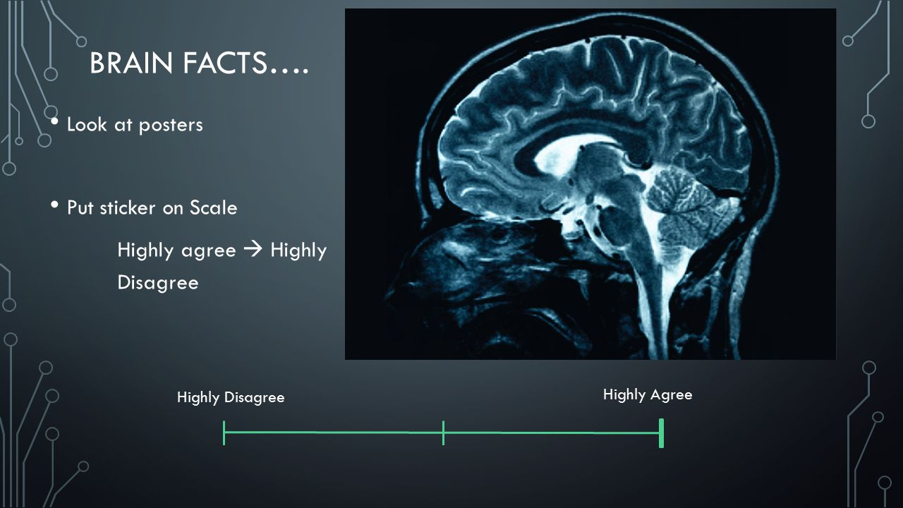 BRAIN FACTS…. Look at posters Put sticker on Scale Highly agree  Highly Disagree Highly Disagree Highly Agree