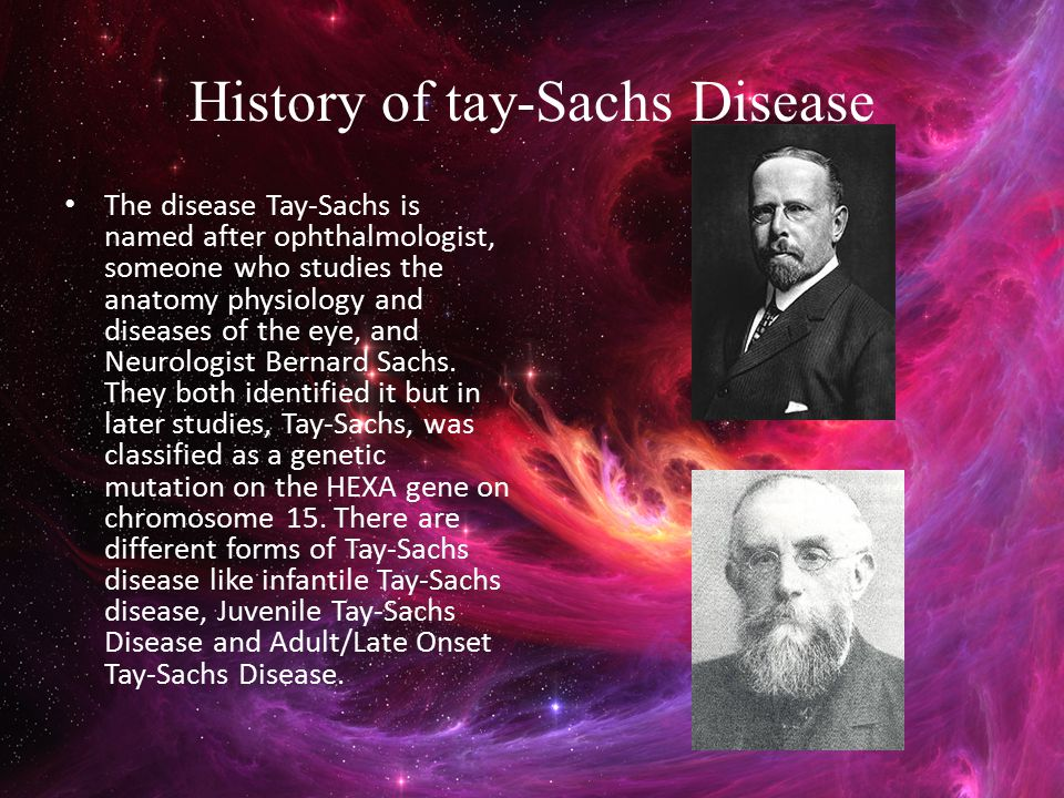 History of tay-Sachs Disease The disease Tay-Sachs is named after ophthalmologist, someone who studies the anatomy physiology and diseases of the eye,