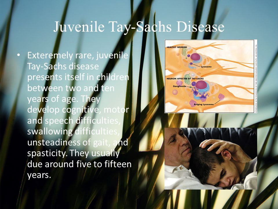 Juvenile Tay-Sachs Disease Exteremely rare, juvenile Tay-Sachs disease presents itself in children between two and ten years of age. They develop cogn