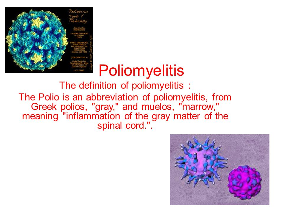 Poliomyelitis The definition of poliomyelitis : The Polio is an abbreviation of poliomyelitis, from Greek polios, gray, and muelos, marrow, meaning inflammation of the gray matter of the spinal cord. .