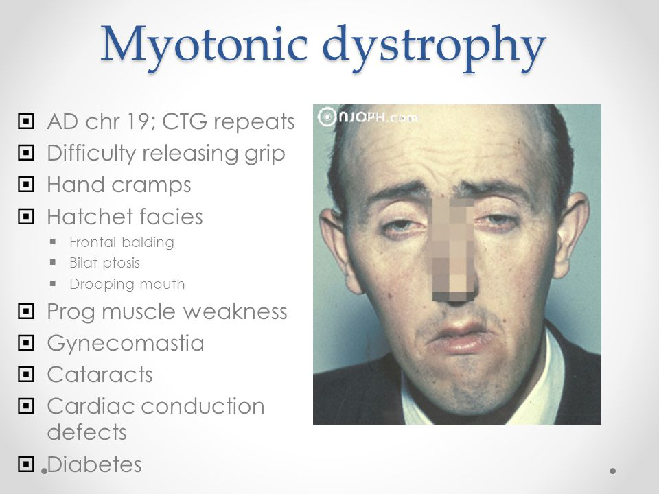 Myotonic dystrophy  AD chr 19; CTG repeats  Difficulty releasing grip  Hand cramps  Hatchet facies  Frontal balding  Bilat ptosis  Drooping mouth  Prog muscle weakness  Gynecomastia  Cataracts  Cardiac conduction defects  Diabetes