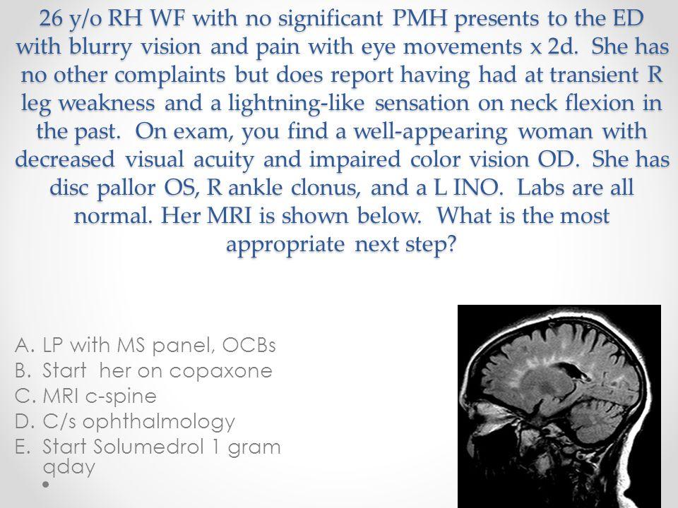 Paraneoplastic syndromes SyndromeAntibodiesAssociated tumor Myasthenia gravisNicotinic Ach Receptor Striated muscle Thymoma Lambert-EatonP/Q voltage-gated Ca channelSCLC Cerebellar degenerationHu Yo other SCLC, neuroblastoma SCLC, ovary, breast Hodgkin lymphoma Brainstem encephalitisMa-1 Ma-3 SCLC testicle Limbic encephalitisVoltage-gated K channel NMDA receptor SCLC Ovary NeuropathyMag Hu Waldenstrom macroglobulinemia SCLC, prostate Stiff-man syndromeAmphiphysinSCLC, breast Opsoclonus/myoclonusRiSCLC, breast, neuroblastoma