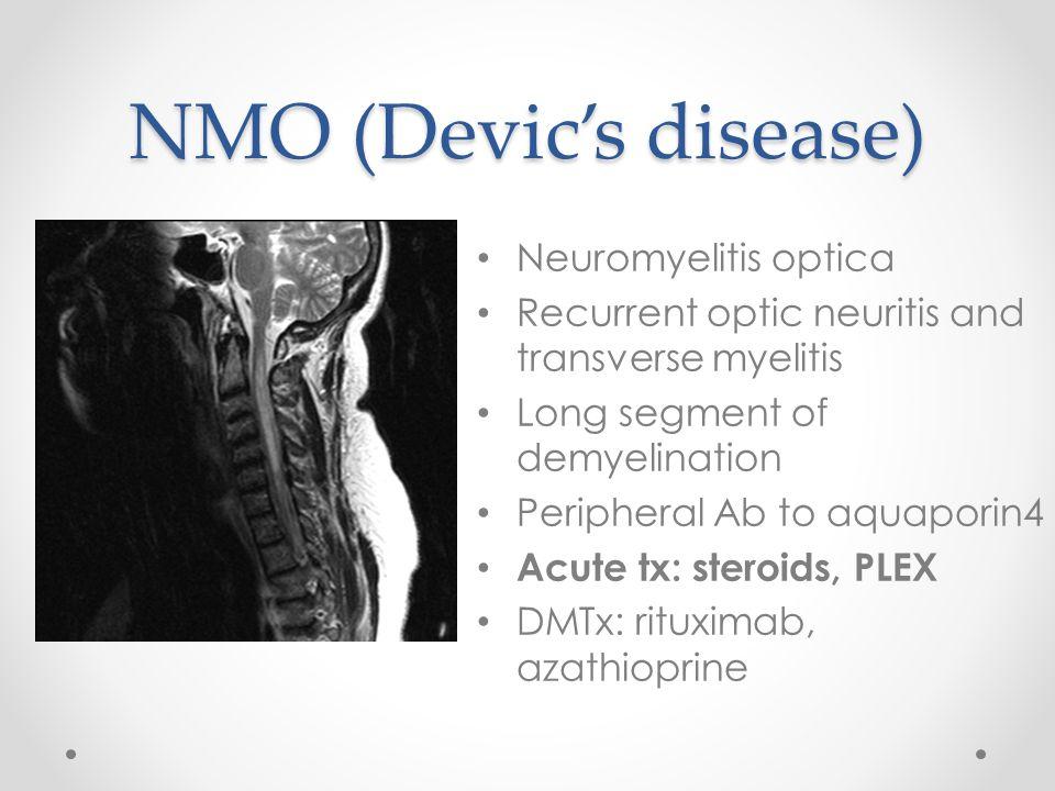 NMO (Devic's disease) Neuromyelitis optica Recurrent optic neuritis and transverse myelitis Long segment of demyelination Peripheral Ab to aquaporin4