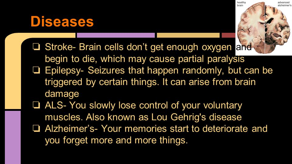 ❏ Stroke- Brain cells don't get enough oxygen and begin to die, which may cause partial paralysis ❏ Epilepsy- Seizures that happen randomly, but can be triggered by certain things.