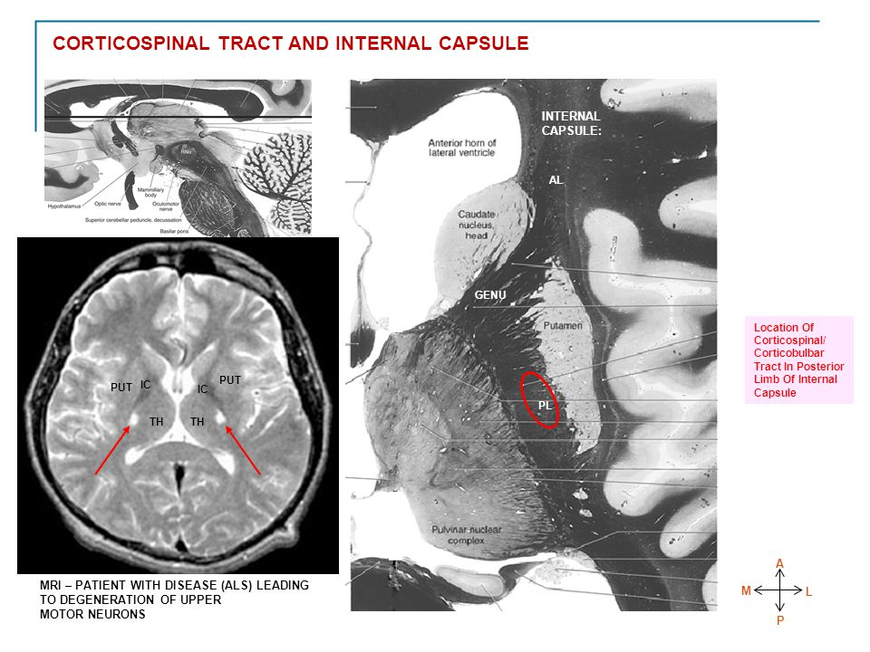 THALAMUS TH PUT IC TH PUT IC MRI – PATIENT WITH DISEASE (ALS) LEADING TO DEGENERATION OF UPPER MOTOR NEURONS A M P L AL GENU PL Location Of Corticospinal/ Corticobulbar Tract In Posterior Limb Of Internal Capsule INTERNAL CAPSULE: CORTICOSPINAL TRACT AND INTERNAL CAPSULE