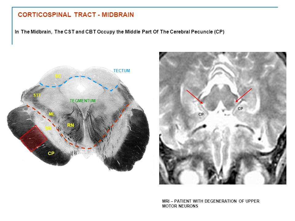 In The Midbrain, The CST and CBT Occupy the Middle Part Of The Cerebral Pecuncle (CP) SN TECTUM TEGMENTUM CP MRI – PATIENT WITH DEGENERATION OF UPPER MOTOR NEURONS RN ML STT SC CORTICOSPINAL TRACT - MIDBRAIN