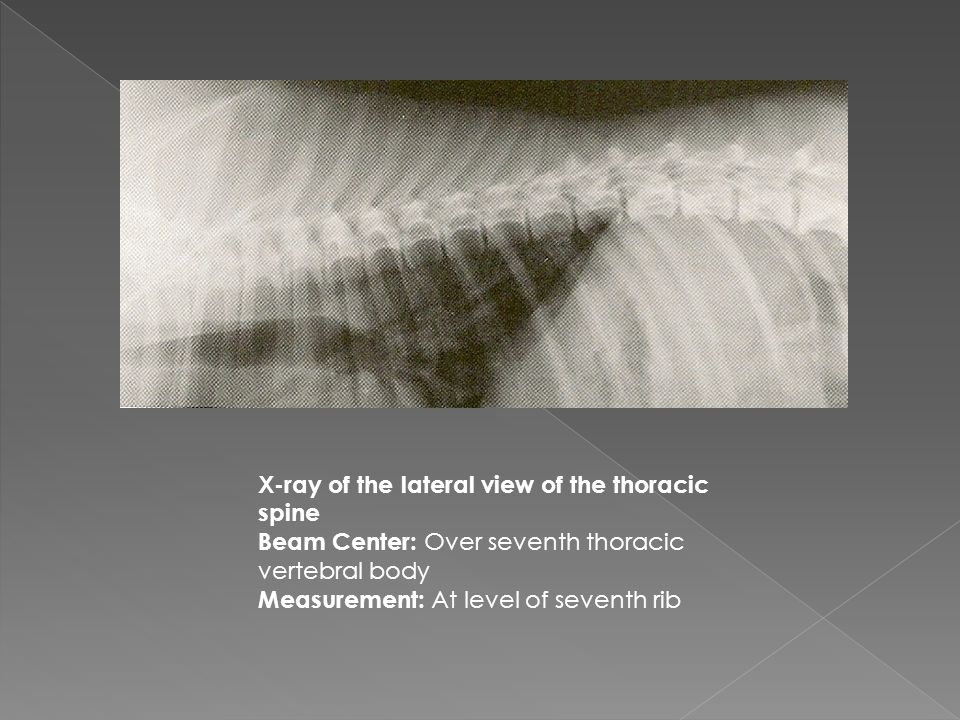 X-ray of the lateral view of the thoracic spine Beam Center: Over seventh thoracic vertebral body Measurement: At level of seventh rib