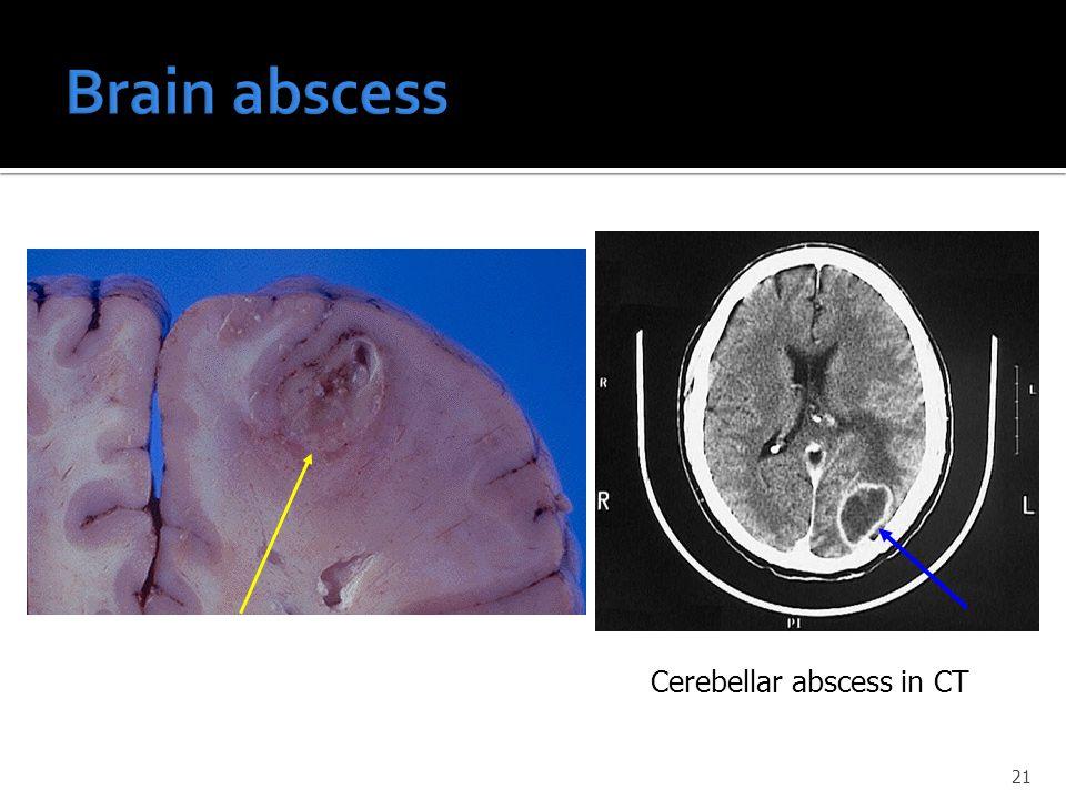 Cerebellar abscess in CT 21