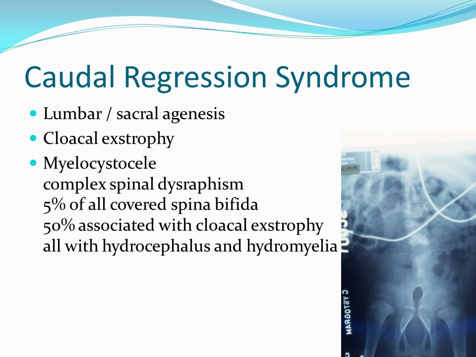 Caudal Regression Syndrome Lumbar / sacral agenesis Cloacal exstrophy Myelocystocele complex spinal dysraphism 5% of all covered spina bifida 50% asso