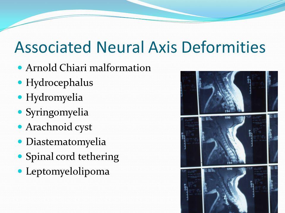 Associated Neural Axis Deformities Arnold Chiari malformation Hydrocephalus Hydromyelia Syringomyelia Arachnoid cyst Diastematomyelia Spinal cord tethering Leptomyelolipoma
