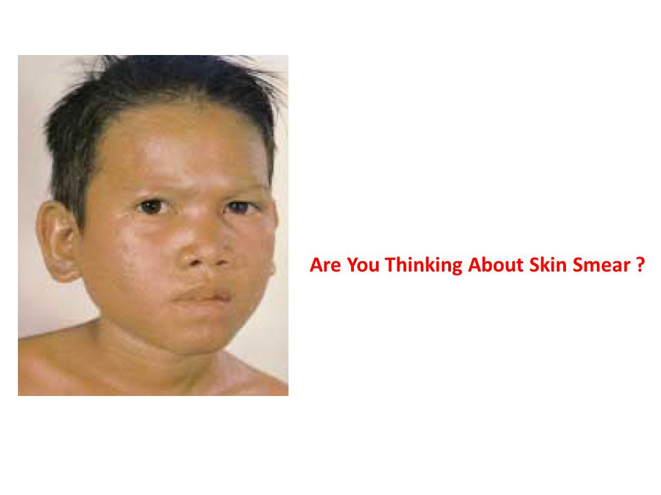 Are You Thinking About Skin Smear