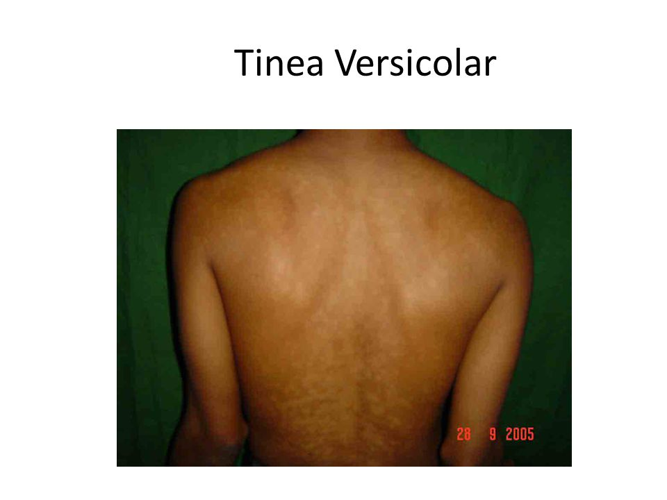 Tinea Versicolar