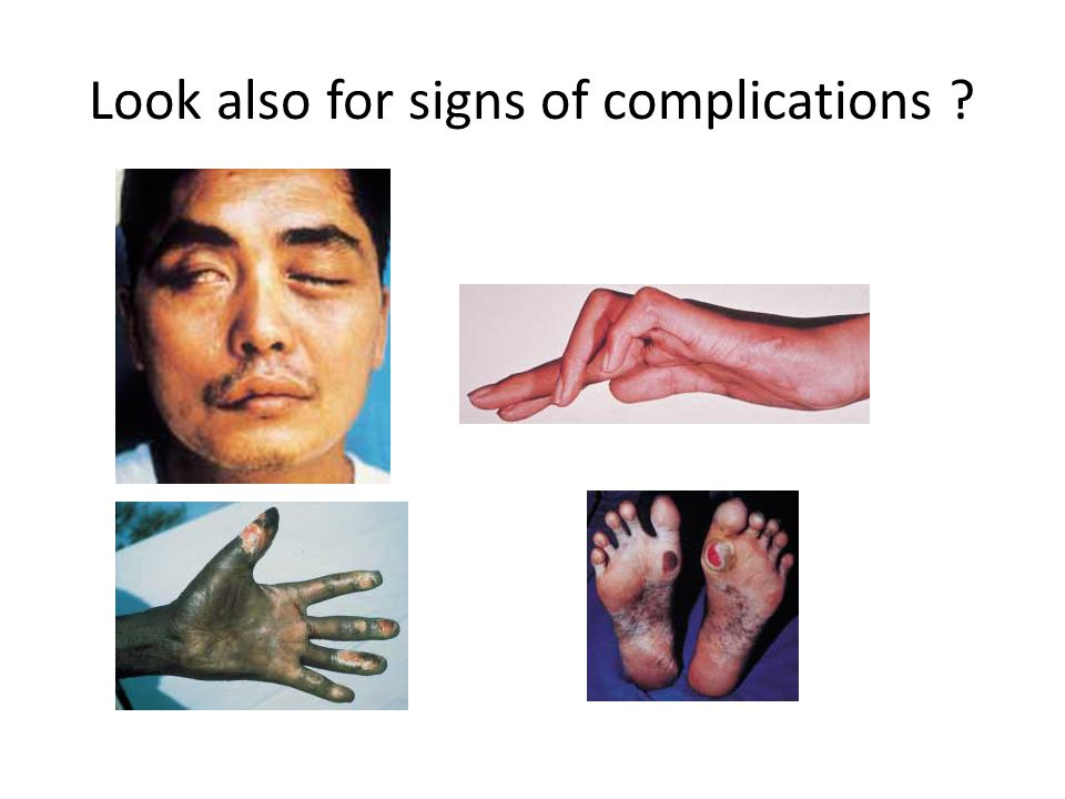 Look also for signs of complications