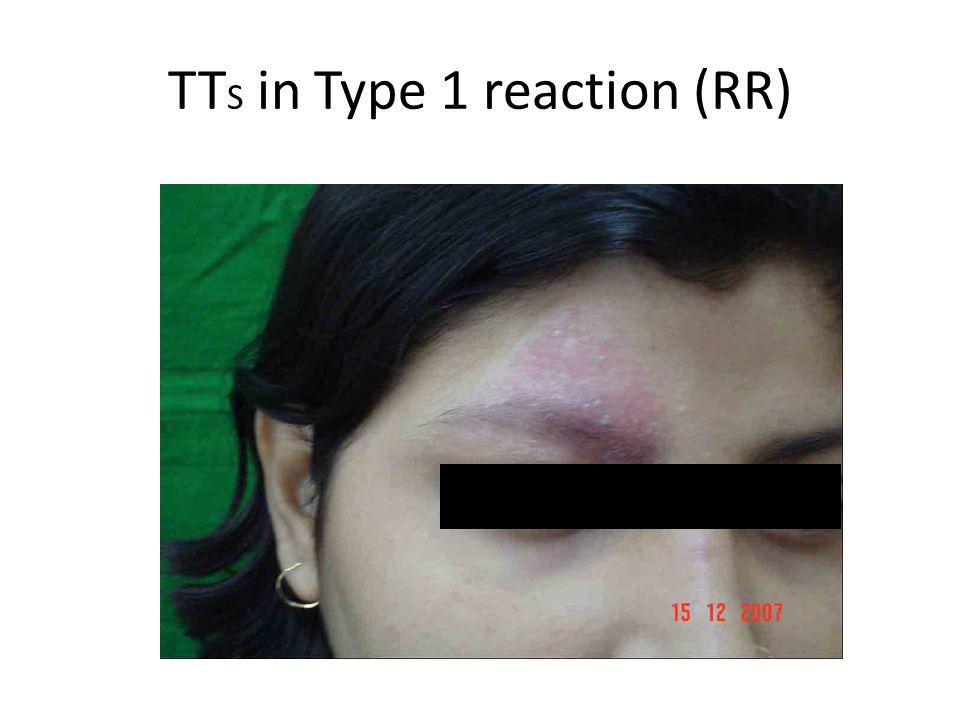 TT S in Type 1 reaction (RR)