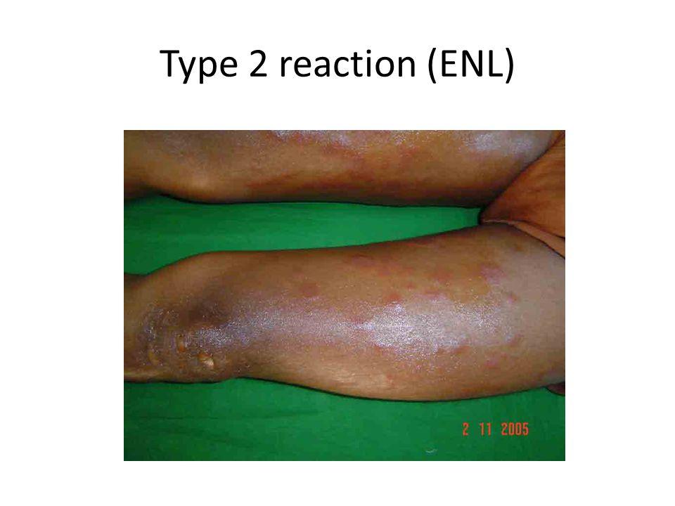 Type 2 reaction (ENL)