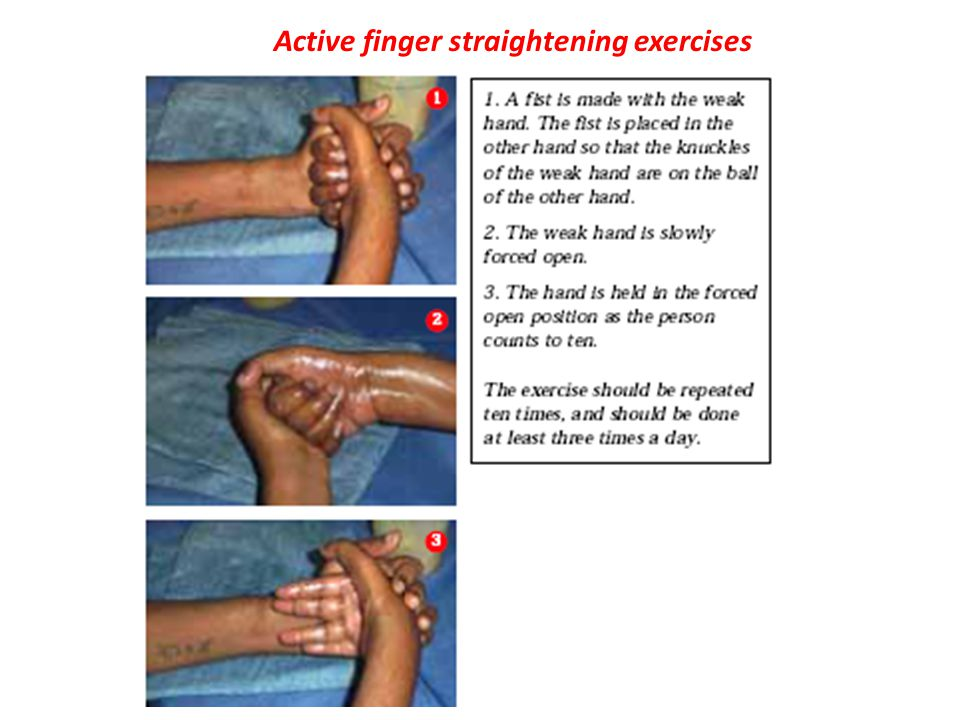 Active finger straightening exercises
