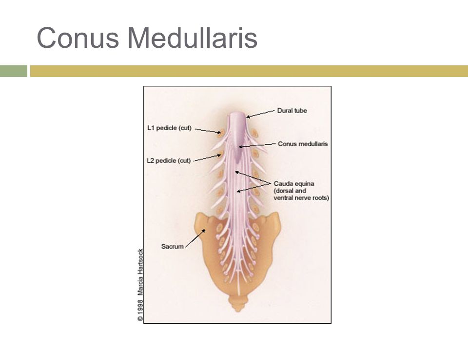 Conus Medullaris