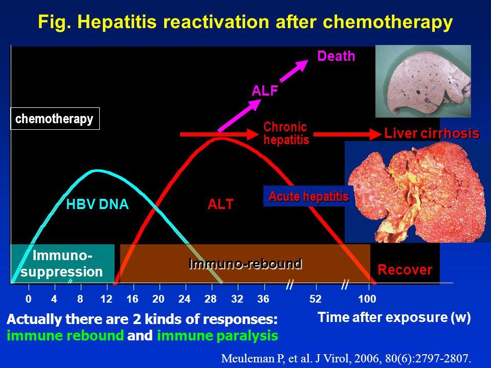 Fig. Hepatitis reactivation after chemotherapy Time after exposure (w) 0481216 20 242832 36 52100 chemotherapy Chronic hepatitis Liver cirrhosis ALT R