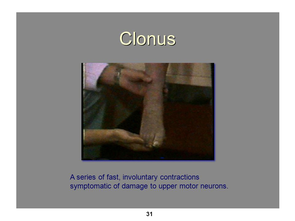31 Clonus A series of fast, involuntary contractions symptomatic of damage to upper motor neurons.