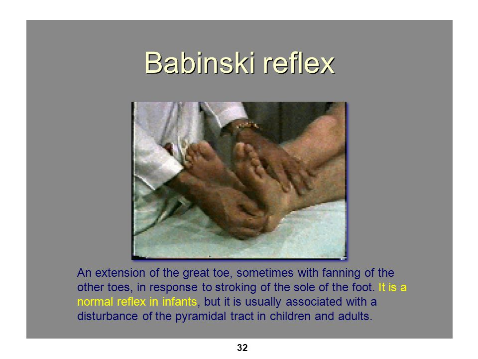 32 Babinski reflex An extension of the great toe, sometimes with fanning of the other toes, in response to stroking of the sole of the foot.
