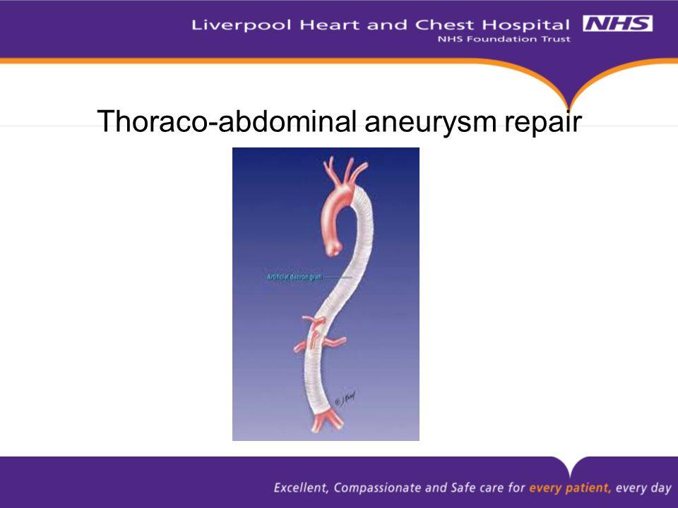 Thoraco-abdominal aneurysm repair