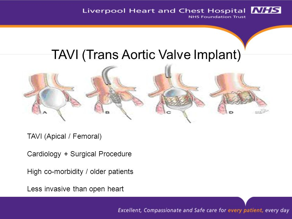 TAVI (Trans Aortic Valve Implant) TAVI (Apical / Femoral) Cardiology + Surgical Procedure High co-morbidity / older patients Less invasive than open heart