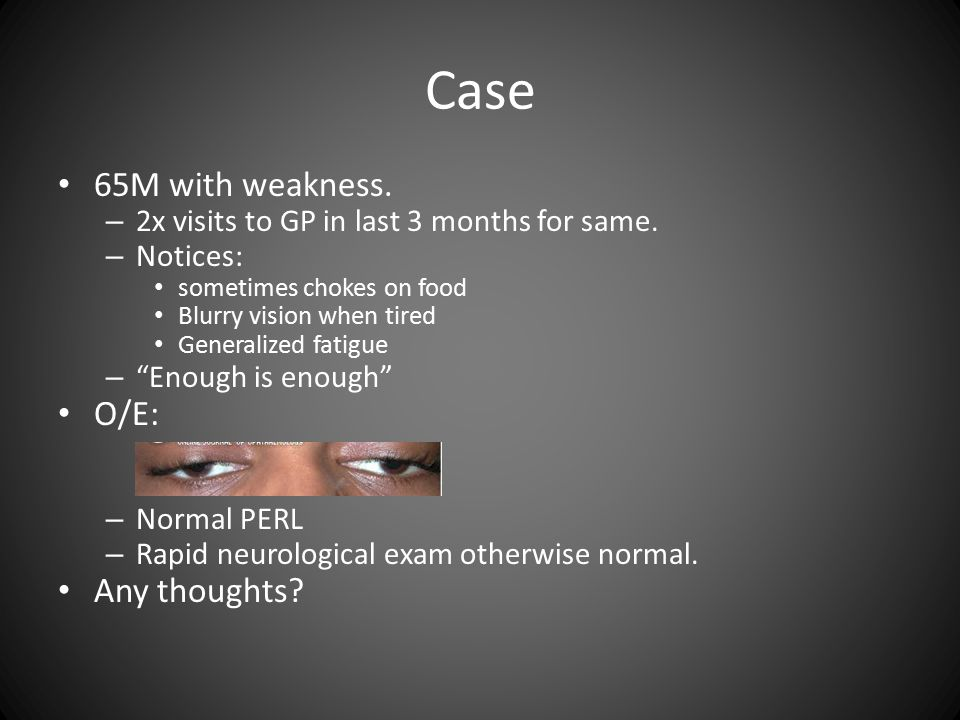 Case 65M with weakness. – 2x visits to GP in last 3 months for same.