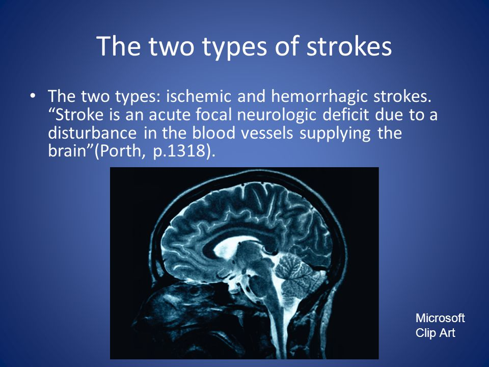 The two types of strokes The two types: ischemic and hemorrhagic strokes.