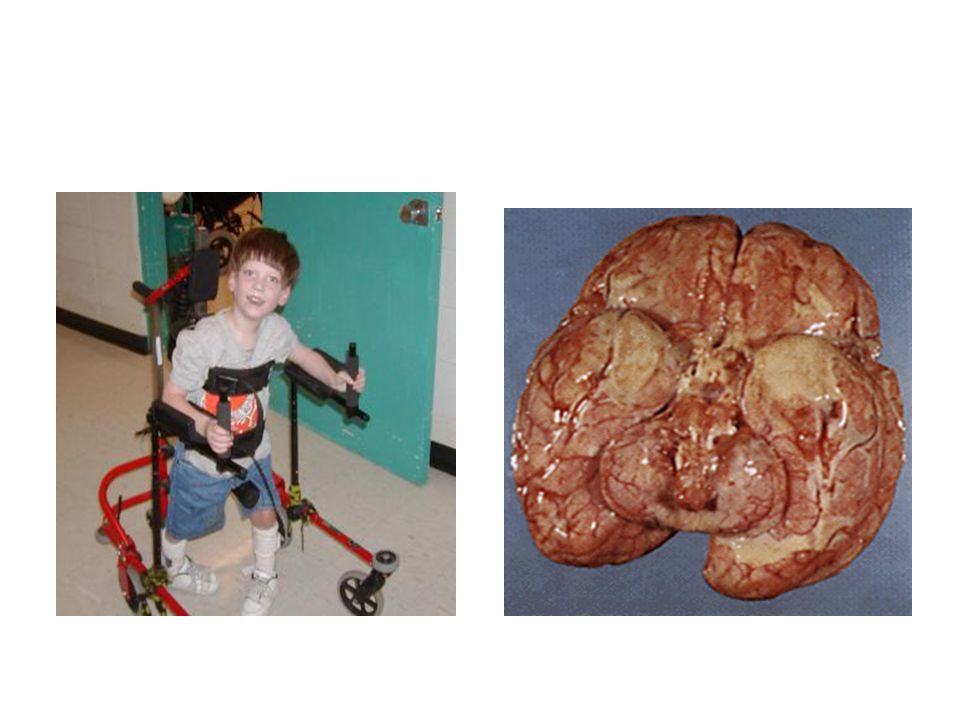 Malfunctions of the Nervous System Cerebral Palsy May occur before/during /after birth.