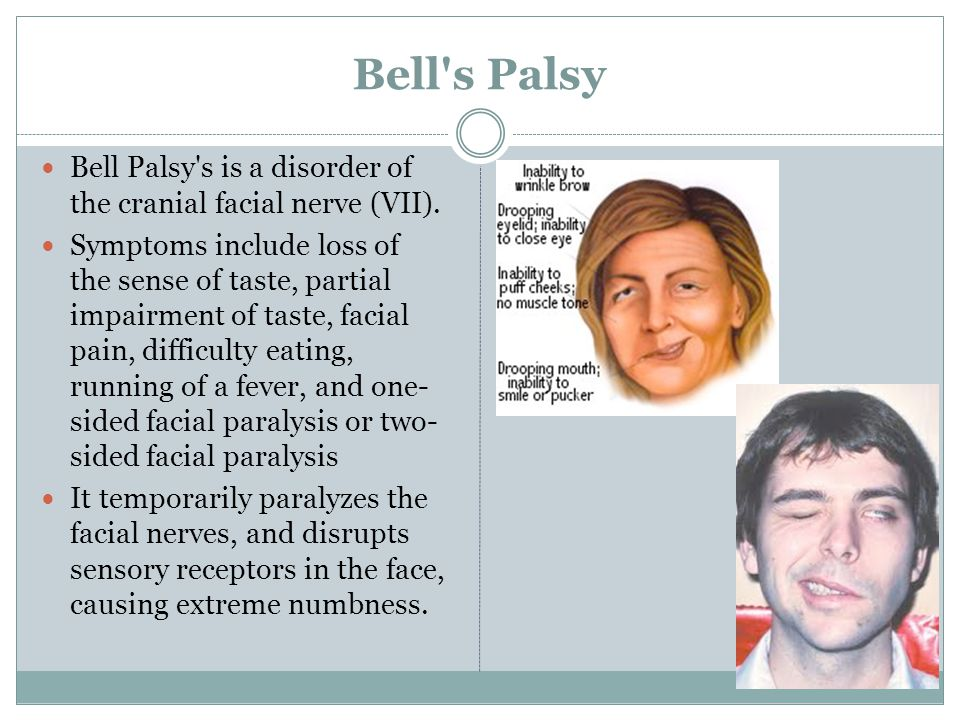Bell s Palsy Bell Palsy s is a disorder of the cranial facial nerve (VII).