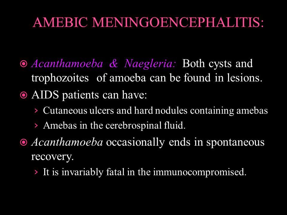 Acanthamoeba & Naegleria: Both cysts and trophozoites of amoeba can be found in lesions.