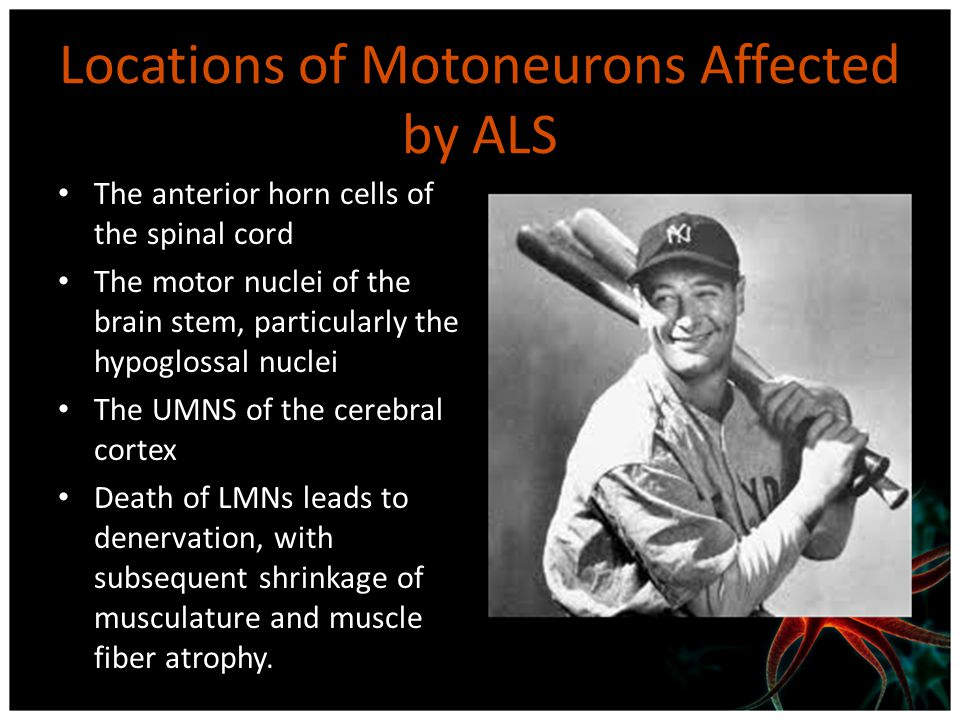 Locations of Motoneurons Affected by ALS The anterior horn cells of the spinal cord The motor nuclei of the brain stem, particularly the hypoglossal n