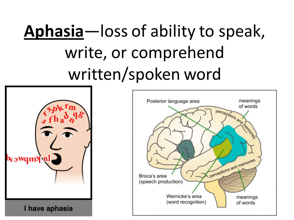 Aphasia—loss of ability to speak, write, or comprehend written/spoken word