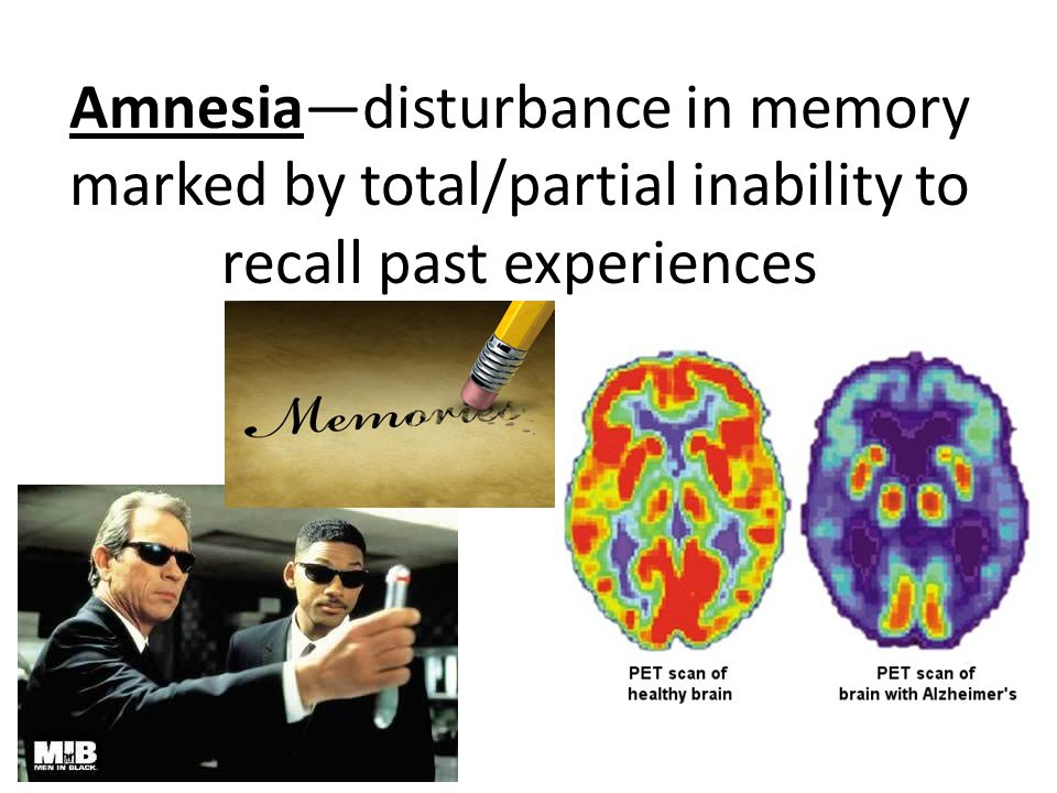 Amnesia—disturbance in memory marked by total/partial inability to recall past experiences
