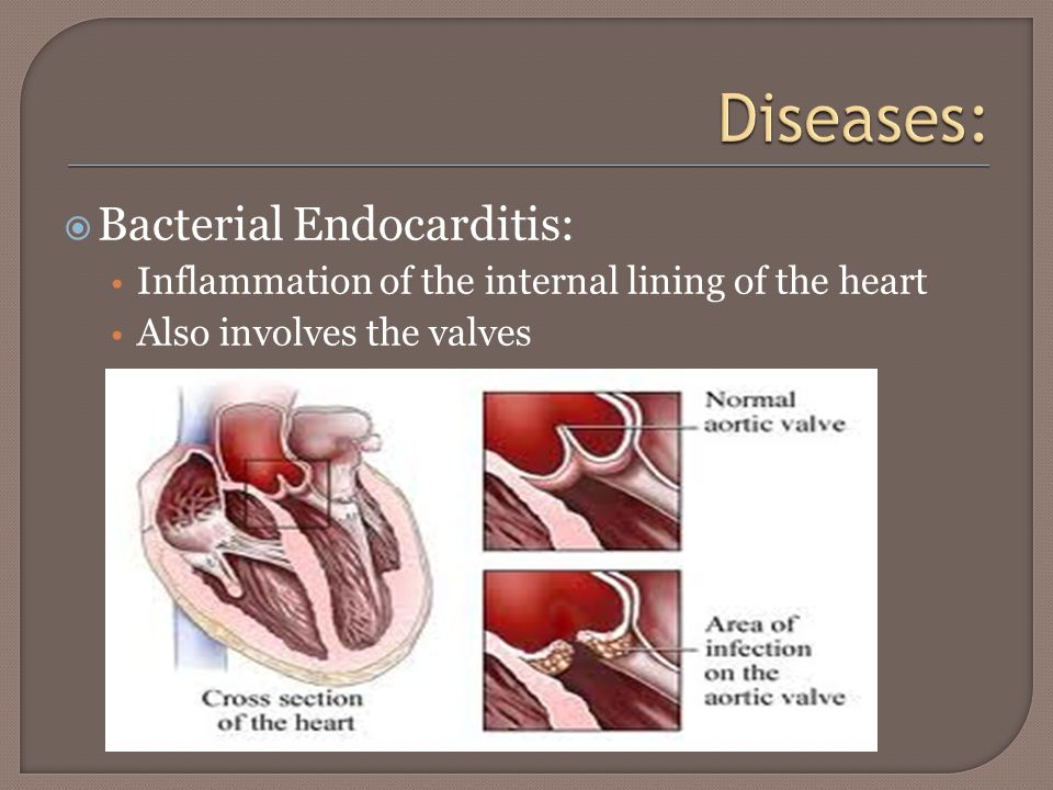  Bacterial Endocarditis: Inflammation of the internal lining of the heart Also involves the valves