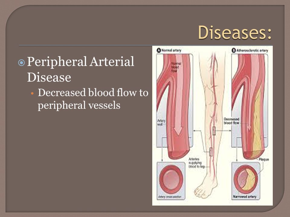  Peripheral Arterial Disease Decreased blood flow to peripheral vessels