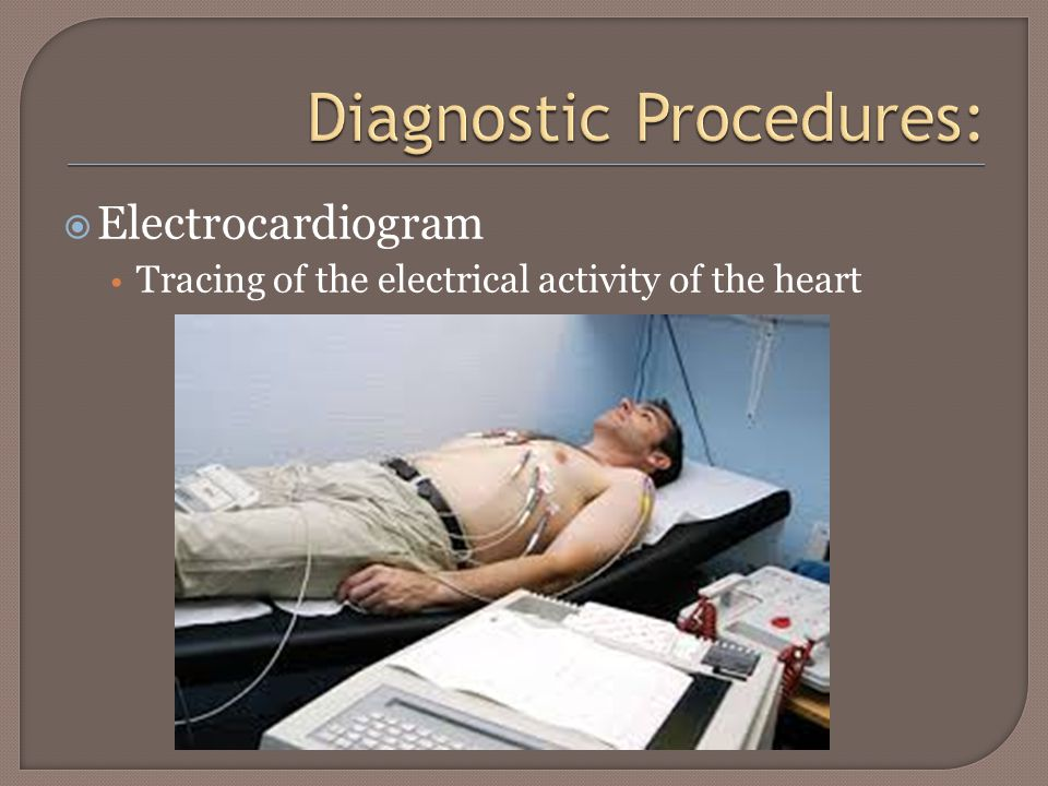  Electrocardiogram Tracing of the electrical activity of the heart