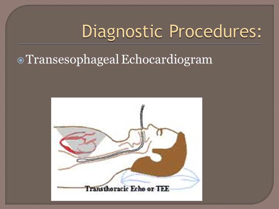  The difference between ECG, Ecocardiogram and Stress Test ecg vs echo vs stress test