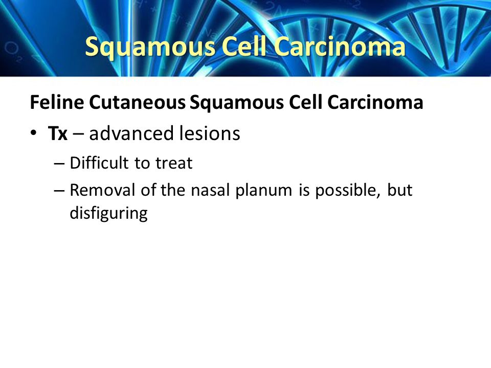 Squamous Cell Carcinoma Feline Cutaneous Squamous Cell Carcinoma Tx – advanced lesions – Difficult to treat – Removal of the nasal planum is possible, but disfiguring