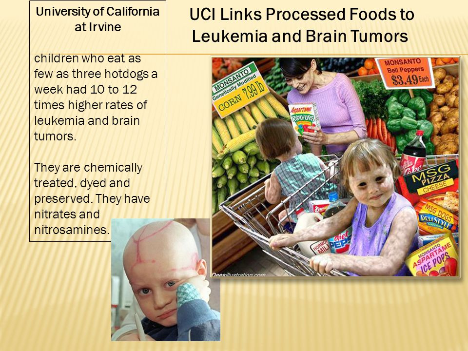 UCI Links Processed Foods to Leukemia and Brain Tumors University of California at Irvine children who eat as few as three hotdogs a week had 10 to 12 times higher rates of leukemia and brain tumors.