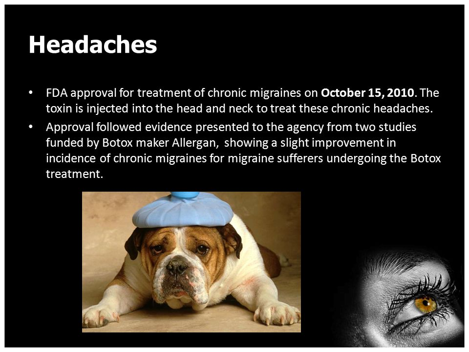Who Should get Botox for Headaches.