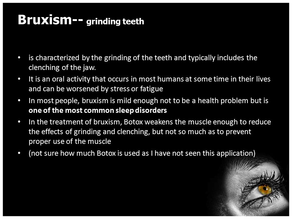 Bruxism-- grinding teeth is characterized by the grinding of the teeth and typically includes the clenching of the jaw.