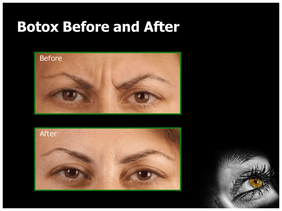I am ready for Botox…now what.Finally, in closing, be realistic and establish a budget.