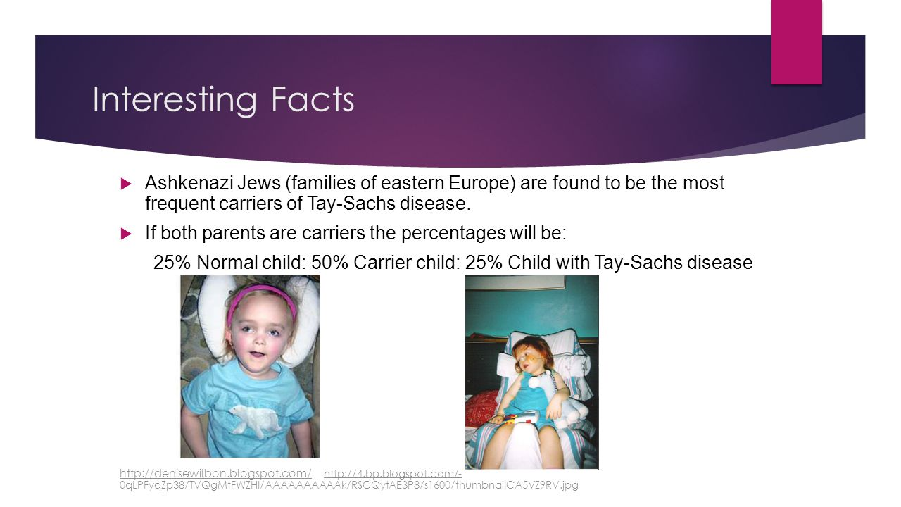 Interesting Facts  Ashkenazi Jews (families of eastern Europe) are found to be the most frequent carriers of Tay-Sachs disease.