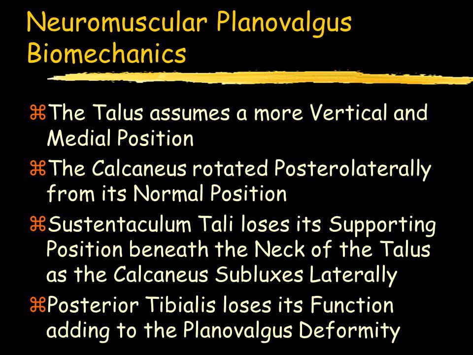 Subtalar Staple Arthroereisis Radiographic Results zExcellent: 15 (48%) zGood: 11 (36%) zFair: 2 ( 6%) zPoor: 3 (10%) EXCELLENT-GOOD RESULT: 84% FAIR- POOR: 16% Bank's Criteria ( CORR 1977 )