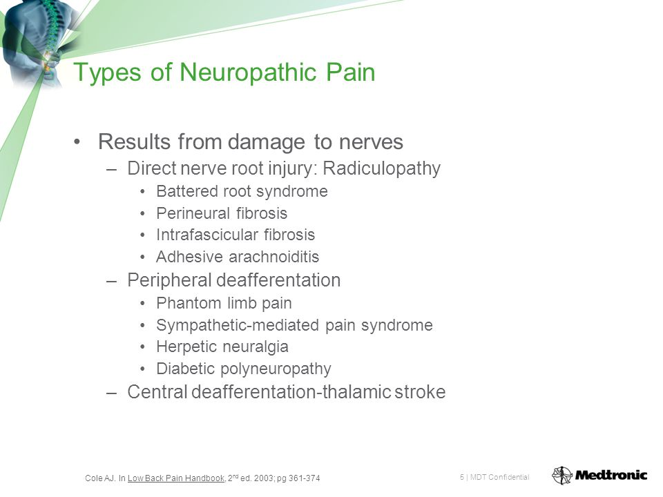 5 | MDT Confidential Types of Neuropathic Pain Results from damage to nerves –Direct nerve root injury: Radiculopathy Battered root syndrome Perineural fibrosis Intrafascicular fibrosis Adhesive arachnoiditis –Peripheral deafferentation Phantom limb pain Sympathetic-mediated pain syndrome Herpetic neuralgia Diabetic polyneuropathy –Central deafferentation-thalamic stroke Cole AJ.