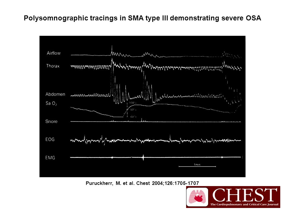 Puruckherr, M. et al. Chest 2004;126:1705-1707 Polysomnographic tracings in SMA type III demonstrating severe OSA