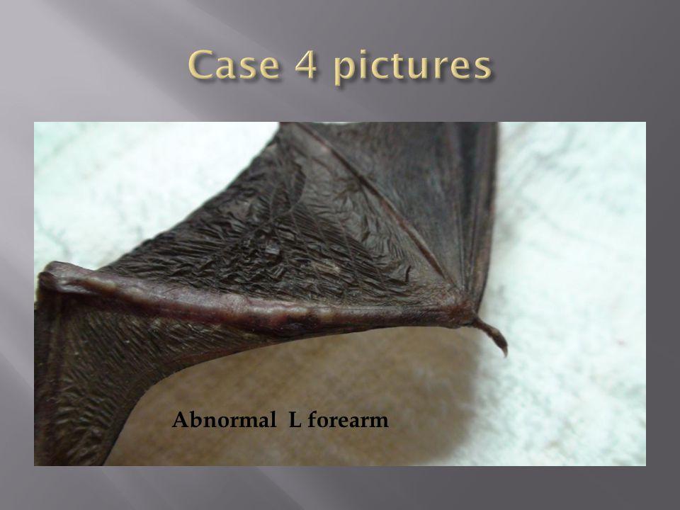 Abnormal L forearm